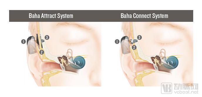 骨传导系统.png