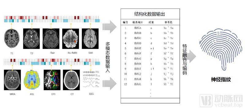神经指纹技术_800.png