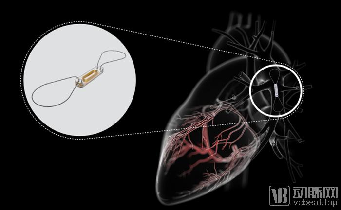 CardioMEMS肺动脉压传感器及植入位置示意5.png